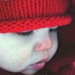 Как оказать первую доврачебную помощь при отморожениях