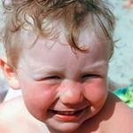 Что делать если ребенок обгорел на солнце или получил солнечные ожоги
