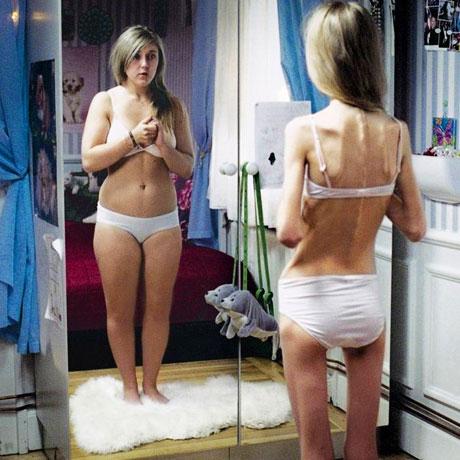 Искажение восприятия внешнего вида своего тела